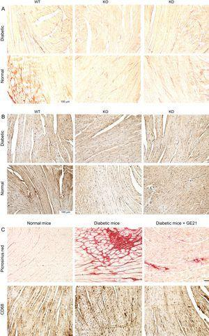 Genetic and pharmacological inhibition of PI3Kγ reduces cardiac fibrosis and inflammation in diabetic mice, without affecting cardiomyocytes or vessels. A and B: representative microscopic images of histological preparations of left ventricles from WT, KD and KO mice in control and diabetic conditions (staining used in A is Picrosirius red, in B is anti-CD68; n = 4 per group). C: representative microscopic images of histological preparations of left ventricles from mice, treated with vehicle or 50mg/kg/d GE21, in control and diabetic conditions. Same staining as above (n = 10 per group; magnification, ÿ200; scale bar, 100 μm). KD, kinase-dead; KO, knock-out; PI3Kγ, phosphoinositide3-kinase gamma; WT, wild-type.