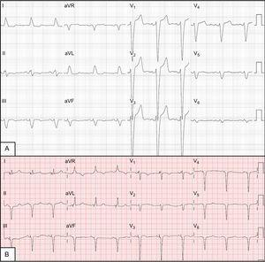 A: Baseline electrocardiogram showing complete left bundle-branch block. B: Electrocardiogram with biventricular pacing with signs of fusion between biventricular pacing and right bundle-branch activation, with narrow QRS.