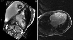 Magnetic resonance imaging with gadolinium shows a subendocardic ring uptake on the left ventricle, the free wall of the right ventricle, the septum, and the back wall of the right atrium.