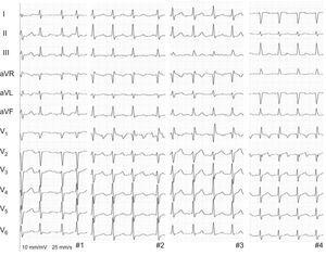12-lead electrocardiogram of atypical atrial flutter in the 4 patients.