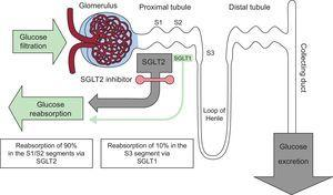 Localization of renal sodium-glucose cotransporters and mechanisms of action of sodium-glucose cotransporter 2 (SGLT2) inhibitors. SGLT, sodium-glucose cotransporter.