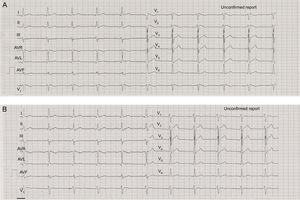 A: Admission electrocardiogram showing Brugada type 1 pattern. B: normal electrocardiogram 24hours later.