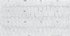 Presenting electrocardiogram from a patient with an ST-segment elevation myocardial infarction equivalent; the culprit artery was the left circunflex and was treated by primary percutaneous coronary syndrome. Smith rules are negative.