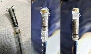 Micra pacemaker and deployment system. A: view of the device after it is removed from the sterile package. B: view of the device as it is flushed with saline solution before complete retraction into the device cup (also how it will look at initiation of deployment). C: the device is completely retracted into the device cup, and is adequately perfused with heparinized saline solution before the delivery system is inserted in the introducer sheath.