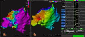 Epicardial voltage maps (left panel) and activation maps (right panel) of the inferior wall of the left ventricle from a left anterosuperior view. At an earlier time point, an area of low voltage and activation is observed in the inferior part of the left ventricle (star in the middle panel), corresponding to the origin of the ventricular tachycardias. The right panel illustrates how the automatic algorithm correctly samples a clinical extrasystole.