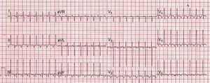 Electrocardiogram on admission, typical of paroxysmal junctional reciprocating tachycardia.