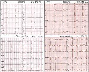 Left panel: standing test in an LQT1 patient. At baseline, the HR is 50 bpm, QT interval is 515ms, and QTc is 470ms. After standing, the HR is 75 bpm, QT interval is 465ms, and QTc is 520ms. A late-onset normal-appearing T wave pattern is noted after standing. Right panel: standing test in an LQT2 patient. At baseline, the HR is 60 bpm, QT interval is 415ms, and QTc is 415ms and subtle bifid T waves are noted in V2-V3. After standing, the HR is 106 bpm, QT interval is 384ms, and QTc is 510ms and obvious bifid T waves have developed in all leads. HR, heart rate; LQT1, long QT syndrome type 1; LQT2, long QT syndrome type 2; QTc, corrected QT interval.