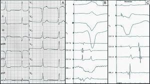 A: electrogram prior to ablation. B: endocavitary recording in sinus rhythm, with the ablation catheter located in the right atrial appendage. The atrioventricular interval is very short at this level. Monopolar recording shows QS pattern. C: endocavitary recording with ventricular pacing. The ablation catheter is again located in the right atrial appendage. A very short ventriculoatrial interval can be seen at this level.