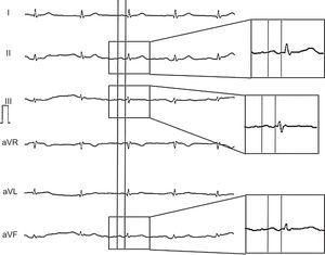 Example of the electrocardiogram of a participant with advanced interatrial blocks: biphasic P-wave in II, III and aVF.