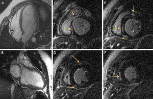 A, B: echo-gradient images long-axis 4 and 2 chamber view exhibited a dilated left ventricle. C-F: late gadolinium enhancement in the subepicardial region at the insertion point of both ventricles and intramyocardial enhancement at the septal middle segment (arrows).