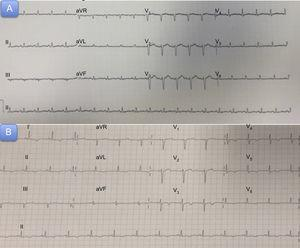 A: Admission electrocardiogram. B: Electrogram 72hours after acute symptom onset.