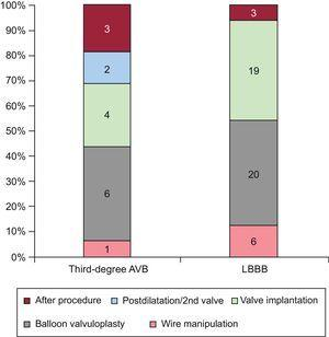 Timing of conduction abnormalities during TAVI procedure. Number of patients with new LBBB and third-degree AVB at each step of the TAVI procedure. AVB, atrioventricular block; LBBB, left bundle branch block; TAVI, transcatheter aortic valve implantation.