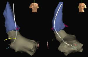 Images of the aorta (blue) and left ventricle (grey) of an electroanatomical navigation system (Ensite NavX Classic, Abbott) with oblique anterior, right projections (left) and left projections (right) obtained during a nonfluoroscopic ablation procedure of a left AV accessory pathway. The ablation catheter designed by our group (white) is shown with electrodes in its body and its tip located at the point of effective ablation (red ball) in the mitral annulus. In addition, the distal end of the catheter is shown in the Hisian region (yellow), right ventricular apex (pink), and coronary sinus (blue), also introduced without X rays. The coronary artery outlet is shown in burgundy.