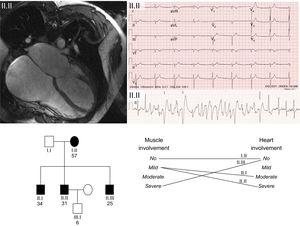 Family with Emery-Dreifuss muscular dystrophy with a novel mutation in the gene encoding emerin. The upper left image shows the cardiac magnetic resonance image of the index case with severe dilatation of both atria. The upper right image shows the resting electrocardiogram with nodal rhythm due to atrial standstill and development of polymorphic tachycardia in the exercise electrocardiogram. The lower part of the figure shows the family tree. Note the limited correlation between the degree and severity of heart involvement and skeletal muscle involvement in the 4 carriers of the mutation. Squares correspond to men and circles to women. Shading shows affected individuals and no shading represents healthy individuals.