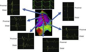 Different samples of signals obtained after ajmaline infusion showing abnormal long-duration low frequency signals in the core of the electrophysiologically abnormal area (purple) and normal signals elsewhere. The proximal and distal signal is shown in each location.