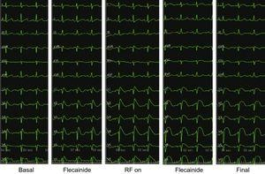 Five consecutive ECGs showing progression of the ST-segment elevation, from basal, after ajmaline, during ablation, after ajmaline again and the final ECG. Note that precordial leads are presented as V1-V2 in second (labeled V1-V2), V1-V2 in third (labeled V3-V4) and V1-V2 in the fourth intercostal spaces (labeled V5-V6) in each ECG. Note the increase in ST-elevation during radiofrequency (RF) delivery and how after ablation ST becomes rounded and is no longer coved-type.
