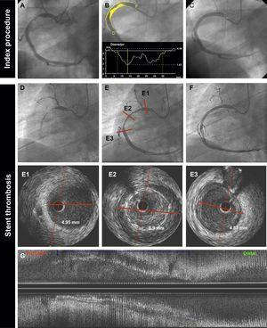 Very late BMS thrombosis caused by probable positive vessel remodeling. A 69-year-old man with non—ST-segment elevation myocardial infarction. The baseline angiography (A,B,C) showed a thrombotic lesion in the proximal right coronary artery (A). B: quantitative coronary angiography showed a reference vessel diameter of 4.84mm. P and D are the proximal and distal reference vessel diameters, respectively. C: the patient was treated with a 4.5 × 38mm BMS. D: at 18 months, the patient presented with very late ST. Angiography showed thrombotic occlusion of the artery. E: flow was restored after thrombus aspiration. IVUS imaging (E1, E2, E3, G) showed proximal and distal reference lumen diameters of 4.9mm (E1, E3); the stented segment showed probable positive vessel remodeling (lumen diameter 6.9mm) with large malapposition (E2, G: axial and longitudinal view respectively). The patient was treated with a 6.0 × 15mm noncompliant balloon. BMS, bare-metal stent; IVUS, intravascular ultrasound; ST, stent thrombosis.