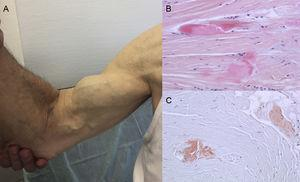 "Signs and symptoms of transthyretin amyloidosis. A: nontraumatic rupture of the right biceps tendon (""Popeye sign""). B and C: staining with hematoxylin-eosin (B) and Congo red (C), both ×200, of carpal ligament sample showing dense collagen bundles with noncellular material. Courtesy of Dr Clara Salas Antón."