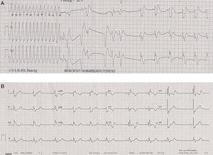 A: Rhythm strip at admission, with regular wide QRS complex tachycardia at 300beats per minute with an inferior axis, consistent with sustained monomorphic ventricular tachycardia, which reverted to sinus rhythm after synchronized cardioversion. B: Baseline electrocardiogram in sinus rhythm with right bundle branch block of the bundle of His. QRS width, 154ms.