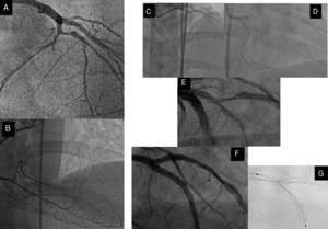 Left anterior descending artery CTO with a significant diagonal branch in the proximal cap (A) and distal filling by collaterals from the RCA (B). C: retrograde approach through a septal channel. D: retrograde guidewire directly crossed to the true lumen and introduced into the guide catheter. E: after predilation, an important dissection crossing bifurcation site was observed. F: this fact, together with the existence of a large lesion in the SB, dictated the strategy and a minicrush was performed with a good angiographic result. G: assessment of the enhancement stent visualization. CTO, coronary chronic total occlusion; RCA, right coronary artery; SB, side branch.