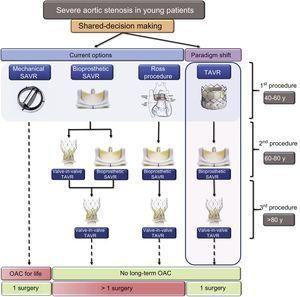 Proposed algorithm for initial and subsequent procedure selection in younger patients with severe aortic stenosis. Patients who opt for a mechanical aortic valve would need long-term anticoagulation. For those who would like to avoid long-term anticoagulation, an initial bioprosthetic SAVR or Ross procedure are viable options. A paradigm shift in choosing TAVR as the initial choice has the advantage of avoiding long-term anticoagulation with a single open-heart surgical procedure for the patient's lifetime. OAC, oral anticoagulants; SAVR, surgical aortic valve replacement; TAVR, transcatheter aortic valve replacement.