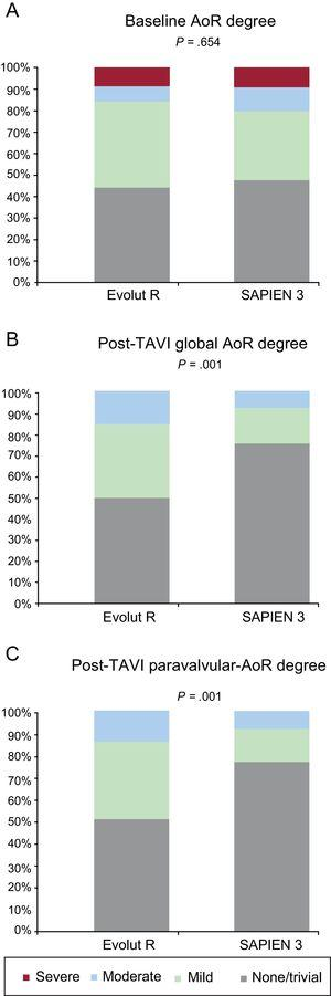 Baseline (A), global (B), and paravalvular (C) AoR after TAVI, according to valve type (SAPIEN 3 vs Evolut R). AoR, aortic regurgitation; TAVI, transcatheter aortic valve implantation.