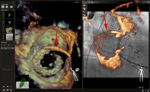 Echocardiographic-fluoroscopic fusion imaging for mitral paravalvular leak closure. The panel on the left shows a 3-dimensional (3D) echocardiographic image of a mitral bioprosthetic valve from the perspective of the left atrium. A guide catheter (red arrow) is seen crossing the atrial septum and an anterolateral paravalvular defect has been cannulated. The panel on the right shows a right anterior oblique fluoroscopic view of the mitral bioprosthetic valve with superimposed 3D echocardiographic images (partial slice thickness). The overlay of the echocardiographic information with the fluoroscopic information appears accurate, but 3D echocardiographic blooming, echocardiographic noise, and the additional soft tissue information from the 3D echocardiographic dataset obscures the fluoroscopic view of the guide catheter and mitral bioprosthetic valve. In our experience with an antegrade approach to these defects, 3D echocardiography in conjunction with nonfusion fluoroscopy is typically sufficient for procedural guidance. The addition of a fiducial marker at the site of the paravalvular defect may be helpful, particularly in cases where the defect is small and not well seen by 3D echocardiography. MV, mitral bioprosthetic valve.