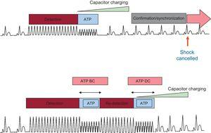 Implantable cardioverter-defibrillator functioning algorithm for ATP BC and DC. ATP DC only (upper panel) and BC/DC (lower panel). ATP, antitachycardia pacing; BC, before charging; DC, during charging. Modified with permission from Schwab et al.21