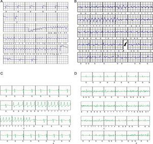 A: Postimplantation ventricular fibrillation induction with effective conversion to sinus rhythm with a 65-J subcutaneous defibrillator shock. B: Periprocedural inappropriate shocks due to rapid atrial fibrillation with intermittent wide complexes; dual-zone programming, conditional at 180 bpm and shock at 250 bpm. C: Nonsustained monomorphic ventricular tachycardia that triggered device therapy; dual-zone programming, conditional at 200 bpm and shock at 250 bpm. D: Episode classified as nonsustained ventricular tachycardia due to oversensing of nonphysiological signals generated by movement of the upper left extremity in a patient; dual-zone programming, conditional at 200 bpm and shock at 250 bpm.