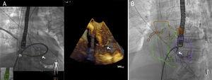 Example of fusion imaging with echocardiography (A) and computed tomography (B) during percutaneous occlusion of a postinfarction interventricular communication. Note the sheath passing through the defect.