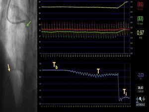 Example measurement of absolute volumetric coronary blood flow. An intracoronary guidewire with a dual pressure and temperature sensor is passed through a guide catheter into the distal segment of the anterior descending coronary artery (yellow arrow). The Rayflow microcatheter is threaded over this guide catheter and advanced into the proximal segment of the artery (green arrow). After connecting the proximal microcatheter tip to an infusion pump, a room-temperature saline solution is infused into the coronary artery at a preset flow rate. The screen displays a real-time readout of the baseline temperature (Tb) and the infusion-induced gradual decrease to a new stable temperature (T). Once the intracoronary temperature stabilizes, the guidewire is withdrawn until the temperature sensor is positioned at the microcatheter tip in order to measure the infusion temperature (Ti). This allows quantitative measurement of maximal volumetric coronary blood flow in the artery according to the formula Qb=1.08Ti/TQi, where Qi is the preset saline infusion rate. Aortic pressure (red trace) and distal coronary pressure (green trace) are monitored simultaneously with the temperature recording; this allows quantitative estimation of fractional flow reserve (yellow trace) and minimal microvascular resistance in the irrigated territory using the formula R=Pd/Qb, where Pd is the distal intracoronary pressure and Qb is the absolute coronary blood flow.
