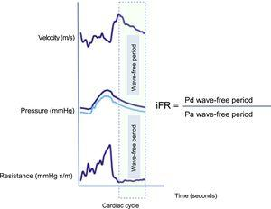 Illustration of microvascular flow velocity, pressure and resistance waves during the cardiac cycle. There is a period during diastole when flow velocity is high and pressure is low. This leads to lower microvascular resistance during the wave-free period. The iFR is calculated using an automatic algorithm that calculates the ratio at rest between the distal coronary pressure and the aortic pressure during the wave-free period. iFR, instantaneous wave-free ratio; Pa, aortic pressure; Pd, distal coronary pressure.