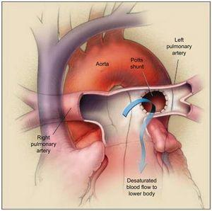 The Potts shunt procedure. The left pulmonary artery is anastomosed to the descending aorta, allowing the desaturated blood to go from the left pulmonary artery to the lower part of the body (arrow). The right pulmonary artery passes in front of the ascending aorta because an arterial-switch procedure has been performed. Reproduced with permission from Blanc et al.55
