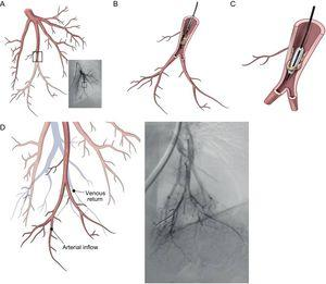 Percutaneous balloon pulmonary angioplasty procedure. A: Pulmonary angiography, showing a stenosis in the subsegment of the 10th segmental artery (anterior view). B: The catheter is introduced into a web stenosis. C: The wire is introduced between the fibrotic material and the balloon is inflated, leading to rupture of the web. D: Angiography after balloon pulmonary angioplasty shows an improvement of blood flow with better perfusion of the parenchyma and quick venous return. In contrast to pulmonary endarterectomy, the fibrous material is not removed from the arteries, but is crushed against the vessel wall. Reprinted with permission from Lang et al.15