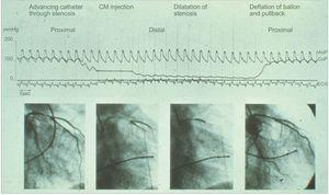 First case of percutaneous coronary intervention. In 1979, coronary pressure across the stenosis before and after balloon angioplasty was recorded in the first case of coronary intervention. AoP, aortic pressure; CM, contrast media; CoP, coronary pressure. Reproduced with permission from Grüntzig et al.10