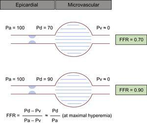 Schema for the concept of FFR. During maximal hyperemia, a direct relationship between coronary pressure and flow could be presumed because the effect from microvascular could be ignored. Despite the same degree of stenoses on visual estimation, the illustrated cases show totally different FFR values. FFR, fractional flow reserve; Pa, aortic pressure; Pd, distal pressure; Pv, central venous pressure.
