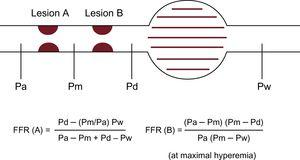 Schema for the concept of FFR in tandem lesions. Equations for predicting FFR of each individual lesion separately is available but complicated. FFR, fractional flow reserve; Pa, aortic pressure; Pd, distal pressure; Pm, coronary pressure between 2 lesions; Pw, coronary wedge pressure.