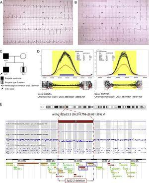 Familial Brugada syndrome. A. Electrocardiogram of the index case in atrial flutter. B.Posterior Brugada type 1 pattern. C.Family pedigree; familial genetic study (SNP-array). D.Analysis of NGS coverage shows a deletion in heterozygosis; abscissa axis, genomic region; ordinate axis, sequence coverage (number of reads); each black line represents 1 single case; the blue line, the median of all cases, and the red line, the index case. E.3p22.2 deletion, characterized by SNP-array; the graph shows a signal decrease in this region. NGS, massive next-generation sequencing. This figure is shown in color only in the online version of the article.