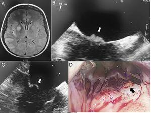 A: cerebral magnetic resonance imaging: acute ischemic images in the middle cerebral artery territory. B,C: transesophageal echocardiography, showing a 6-mm mobile mass on the atrial side of the mitral valve (white arrow). D: thoracotomy view showing a yellow mass on the atrial side of the mitral valve (black arrow).