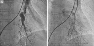 A: venous phase not visible before balloon pulmonary angioplasty. B: venous return to the left atrium visible after balloon pulmonary angioplasty.