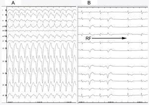 A, Electrocardiogram showing broad QRS tachycardia with left bundle branch block morphology. B, Intermittent aberrance during ablation and reversion to sinus rhythm. RF, radiofrequency.