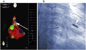 A, Electroanatomic voltage map of the right atrium during sinus rhythm, with ablation lesions toward the scarring areas and fractionated electrograms in the superolateral region of the right atrium. The arrow shows the site where flutter was interrupted during RF application. B, Ablation position of the atrioventricular node after Micra deployment in the mid septum of the right ventricle (arrow). RF, radiofrequency.