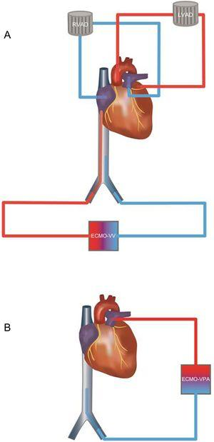A: Before cardiac transplant: RVAD system with recirculation caused by pulmonary and tricuspid regurgitation. Under severe hypoxemia VV-ECMO was added. The inflow cannula in the inferior vena cava ensured drainage of deoxygenated blood. B: After cardiac transplant: A VPA-ECMO was implanted. No regurgitation was feared due to competent valve function. ECMO, extracorporeal membrane oxygenation; LVAD, left ventricular assist device; RVAD, right ventricular assist device; VPA, venopulmonary artery; VV, venovenous.
