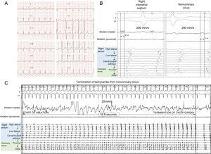 A: electrocardiogram showing atrial tachycardia. B: earliest atrial electrograms in the right atrial septum and the noncoronary sinus. C: termination of the tachycardia with focal ablation from the aortic root.