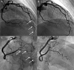 Coronary angiogram in a hypothyroid patient with multiple spontaneous coronary artery dissections. A and B: angiogram of the anterior descending artery with type 2 dissection (intramural hematoma) with involvement of a distal corkscrew segment (arrows) and its resolution during follow-up. C and D: angiogram of the right posterolateral branch with type 2 dissection (arrows) and its resolution during follow-up.