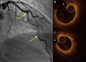 Coronary angiography and OCT imaging in a hypothyroid patient with spontaneous coronary artery dissection. A: angiogram of the anterior descending artery with a large type 2 dissection (arrows). B and C: OCT images of the proximal and mid segments showing a complete intimomedial flap separating the false lumen (large intramural hematoma) from the real one, where the OCT catheter and guidewire are located. OCT, optical coherence tomography. *Wire artifact.