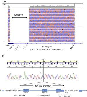 Sequencing results for the CASQ2 gene. A: Integrative Genomics Viewer (IGV) visualization for long-range PCR product of the index case. B: electropherogram and representation of the exact location of the deletion.