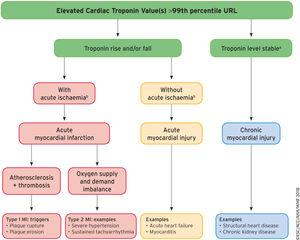 A model for interpreting myocardial injury. Ischemic thresholds vary substantially in relation to the magnitude of the stressor and the extent of underlying cardiac disease. MI, myocardial infarction; URL, upper reference limit. Reproduced with permission of Thygesen et al.1 Translated and reprinted by permission of Oxford University Press on behalf of the European Society of Cardiology. aStable denotes ≤ 20% variation of troponin values in the appropriate clinical context. bIschemia denotes signs and/or symptoms of clinical myocardial ischemia.