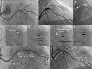 A: Calcified, tortuous circumflex artery with distal, medial, and proximal lesions (asterisks). B:The intravascular ultrasound (IVUS) catheter could not be advanced. C:Application of the side-branch anchor technique did not allow advancement of the lithoplasty balloon. D:Underexpansion of the 2.5-mm noncompliant (NC) balloon in the medial area helped advance the catheter extender and move the lithoplasty balloon forward (E). E:Unsuccessful dilation with 40 pulses. F:Opening of lesion after 60 pulses. G:Outcome after placement of 4 drug-eluting stents (DES).