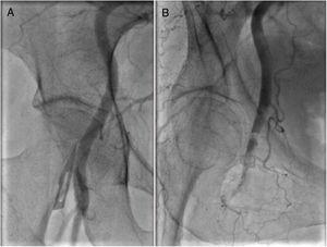 Right femoral angiography before (A) and after (B) transfemoral transcatheter aortic valve implantation demonstrating a localized femoral artery dissection. An excellent outcome was achieved with stenting via the left femoral artery using a crossover technique.